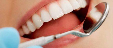 carie-e-pulizia-dei-denti-4